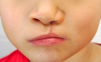 Cleft palates can be reconstructed